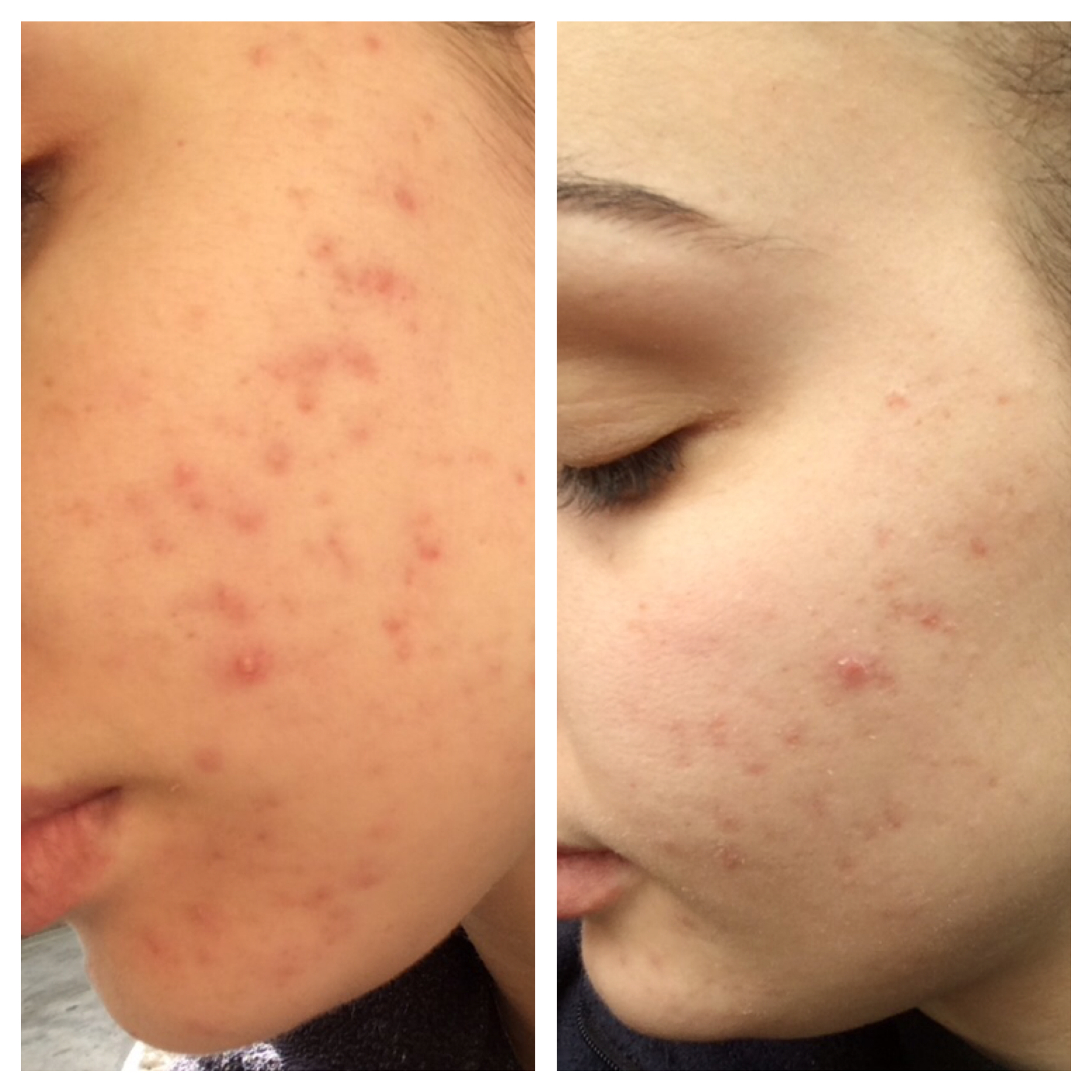 how to clear acne in a day