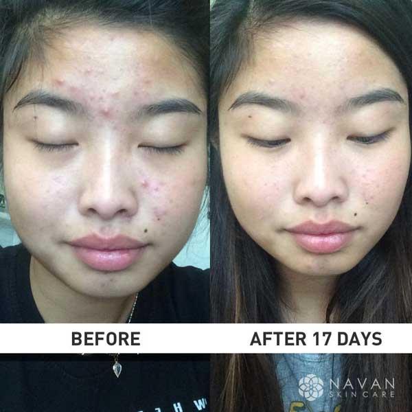 Navan Skin Care Naturalskins