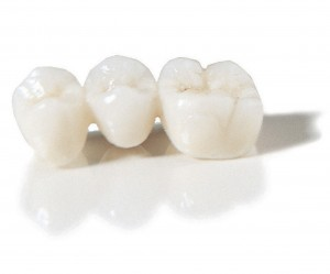 high quality dental crowns & bridges in Spain