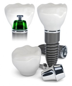 quality dental implants specialist in Spain, Costa Blanca
