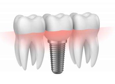 complete dental implant makeover