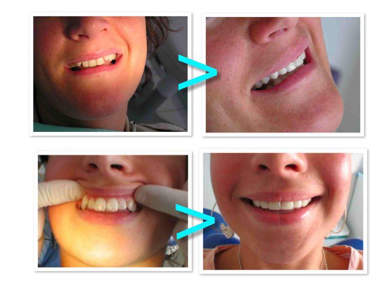 PROdentalCARE patient dental veneers