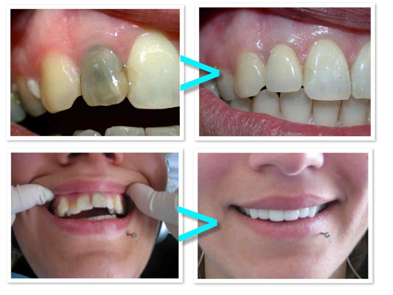 PROdentalCARE cosmetic dentistry, full porcelain dental crowns