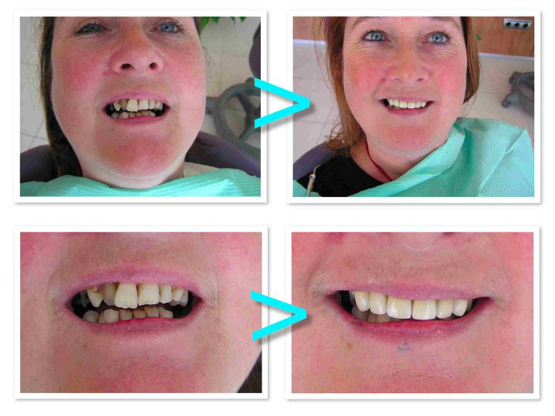 PROdentalCARE cosmetic dental treatment with crowns and bridges