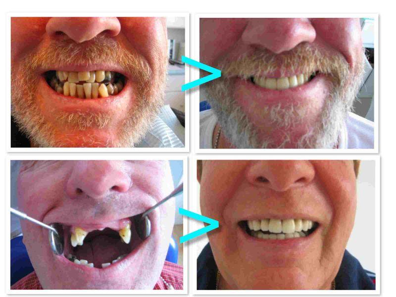 PROdentalCARE Irish patient dental work