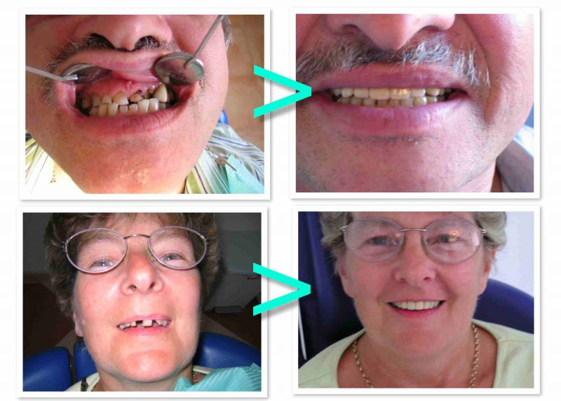 PROdentalCARE dental implants and crowns