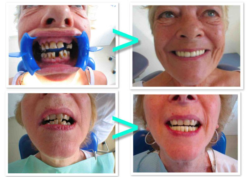 PROdentalCARE implants and dental crown work