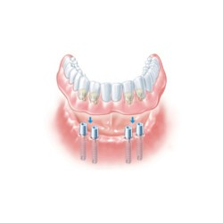 Mini dental Implants with Dentures