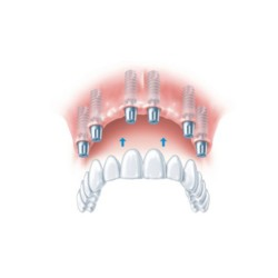 complete dental implant bridge replacement