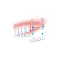 dental implant bridge treatment