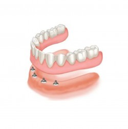 palate free denture on dental implants