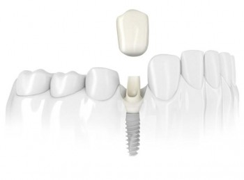 Affordable dental Implant in Spain