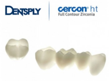 crown and dental bridge work in Spain