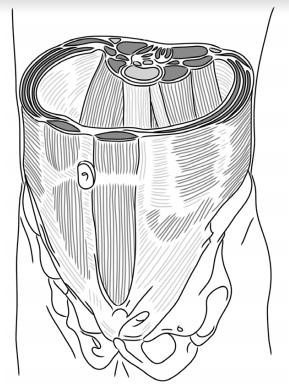 Los rectos abdominales son músculos posturales y flexores de la columna vertebral