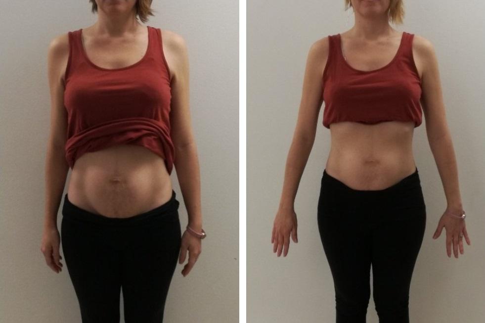 La diástasis abdominal: qué es y cómo tratarla: un caso real, el antes y el después
