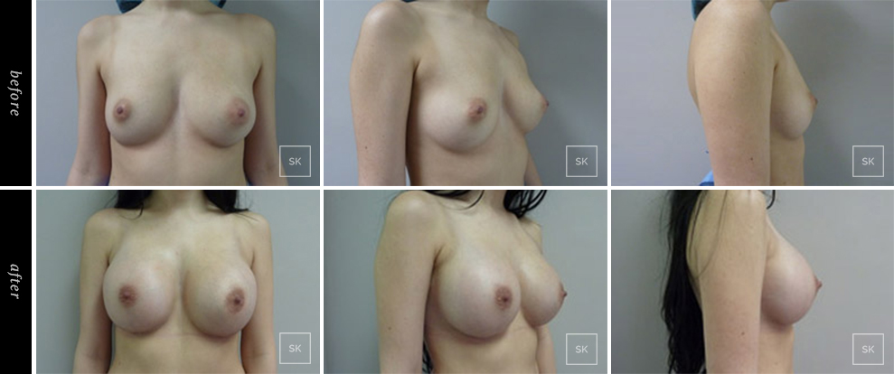 Before and After Breast Augmentation Photos - SK Plastic Surgery