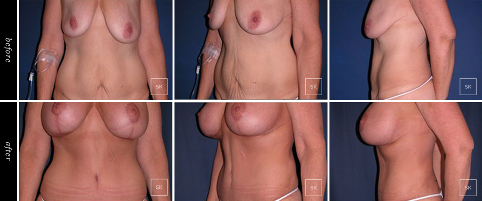 Before and After Body Lift Photos - SK Plastic Surgery