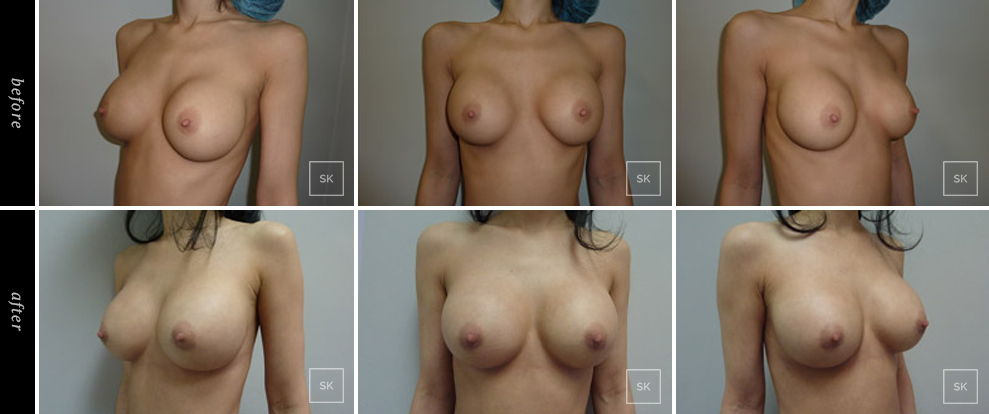 Before and After Breast Revision Photos - SK Plastic Surgery