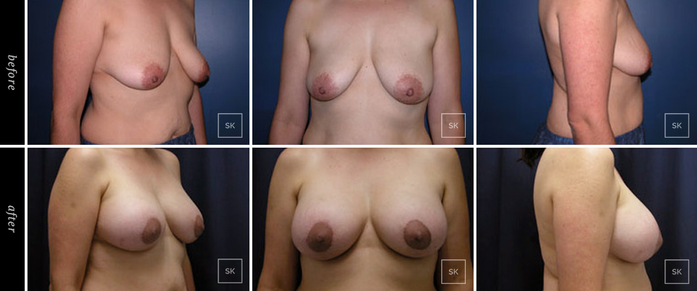 Before and After Breast Lift Photos - SK Plastic Surgery