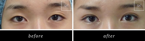 Before and After Eyelid Surgery, Asian Eyelid Surgery Photos
