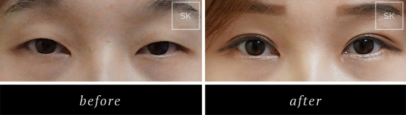 Before and After Eyelid Surgery, Asian Eyelid Surgery  Photos - SK Plastic Surgery