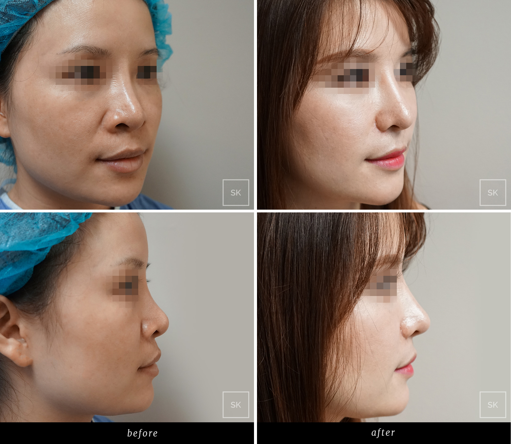 Before and After Nose Surgery Photos - SK Plastic Surgery