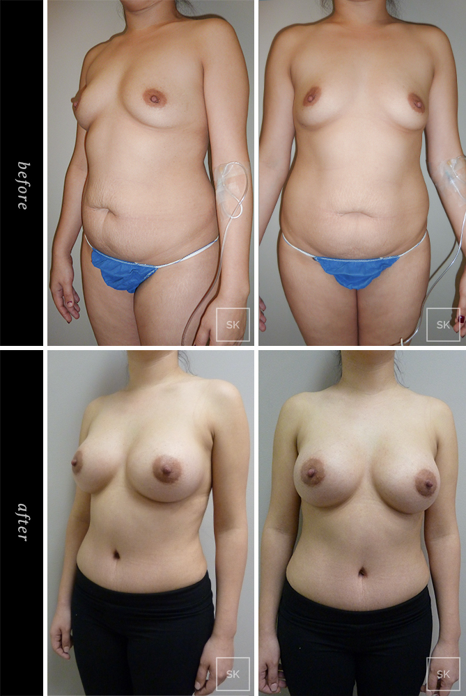 Before and After Tummy Tuck Photos - SK Plastic Surgery