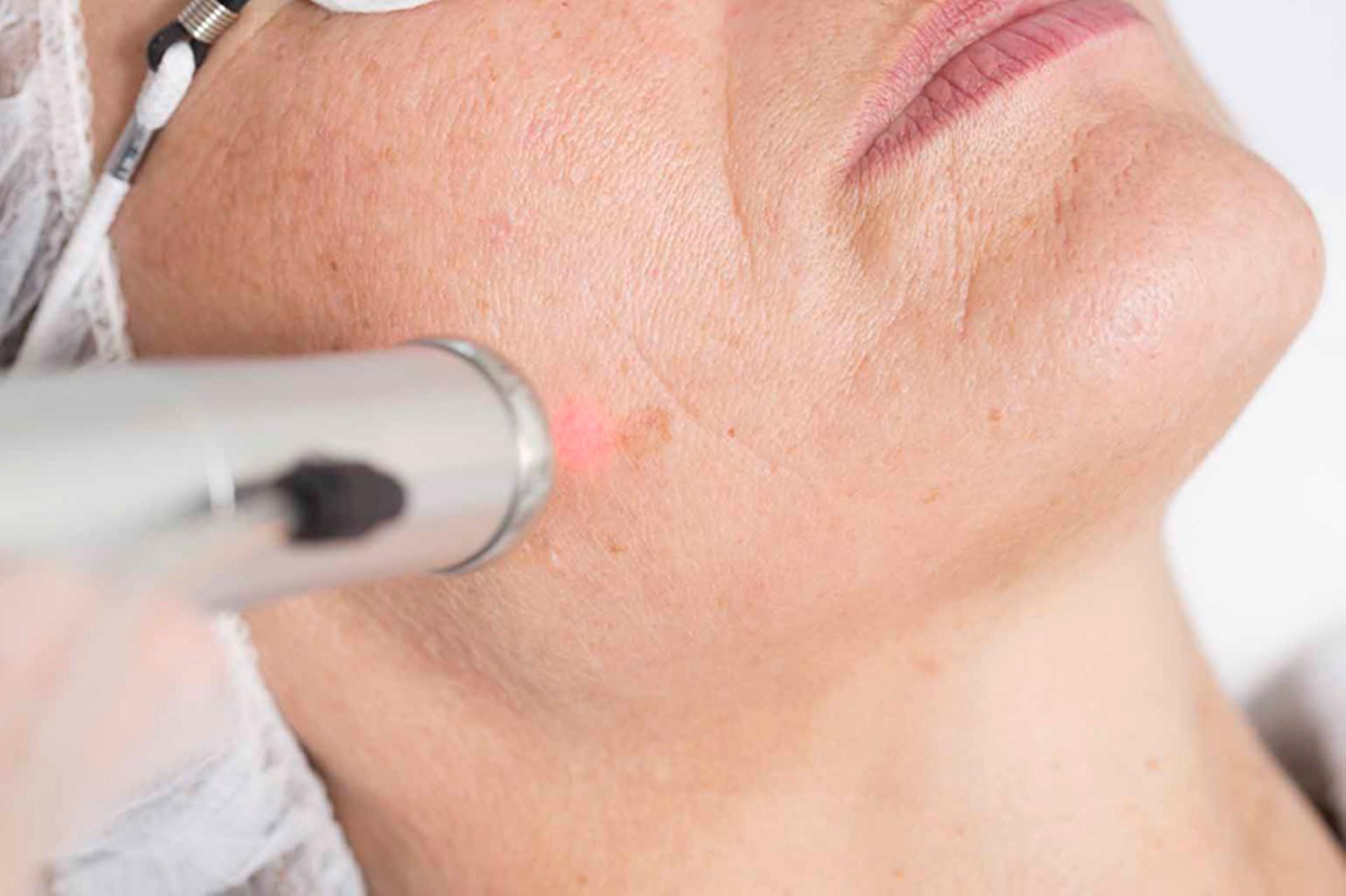 Ongewenste haargroei in het gezicht? Hoe laserontharing overbeharing aanpakt bij Laserkliniek Zwolle