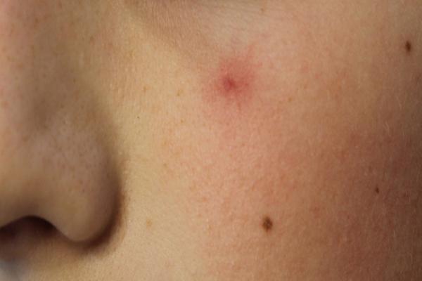 Een spider naevus is een onschuldige vaataandoening - Laserkliniek Zwolle-Huidtherapie