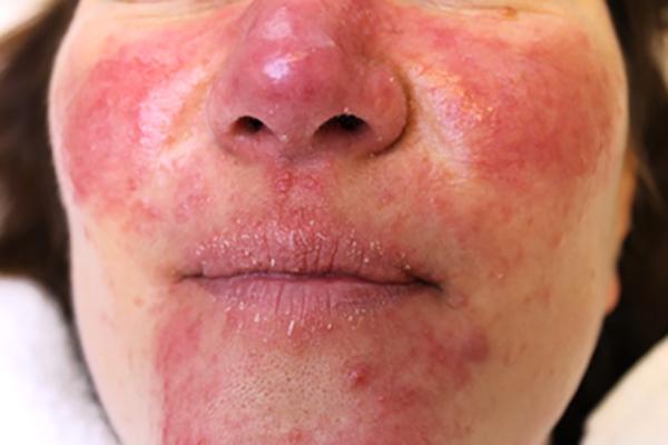 Rosacea is een chronische huidaandoening. Wat het meest opvalt is de felle roodheid en in ernstigere mate gaat dit gepaard met vervelende huidirritatie. Laserkliniek Zwolle-Huidtherapie