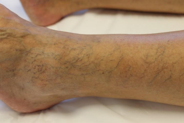 Foto van een Vaatlaser behandeling bij Laserkliniek Zwolle-Huidtherapie Voor de behandeling