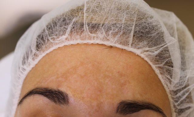 Voorfoto tijdens een cosmelan behandeling bij Laserkliniek Zwolle-Huidtherapie