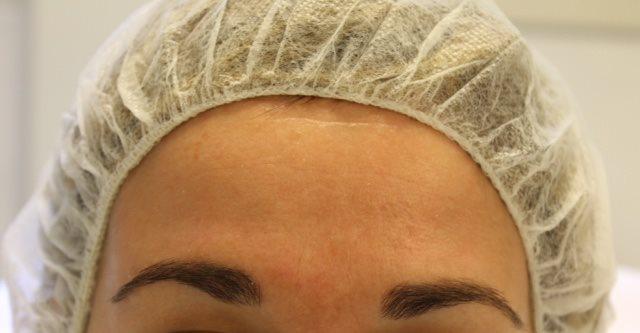 Na foto tijdens een cosmelan behandeling bij Laserkliniek Zwolle-Huidtherapie