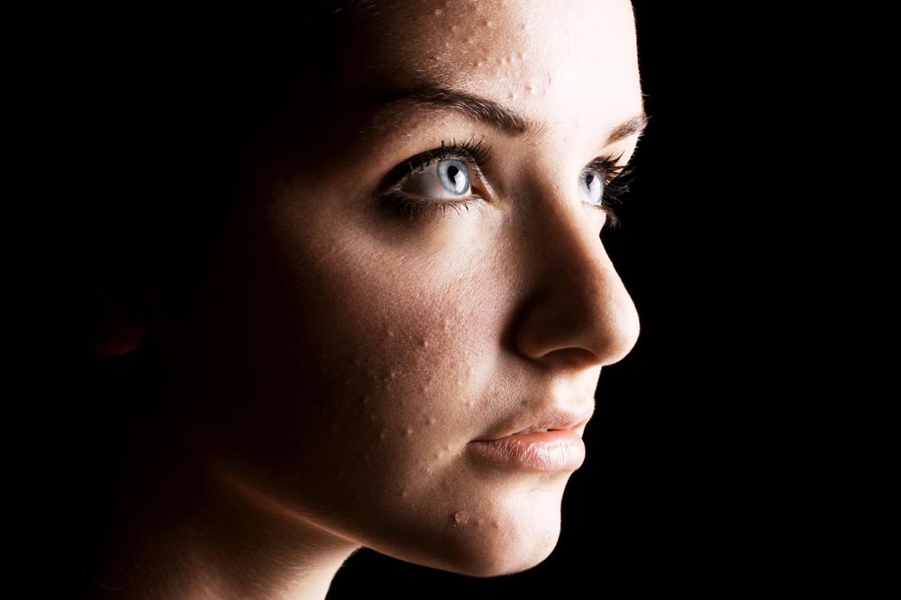 Vijf meest gestelde vragen over acne