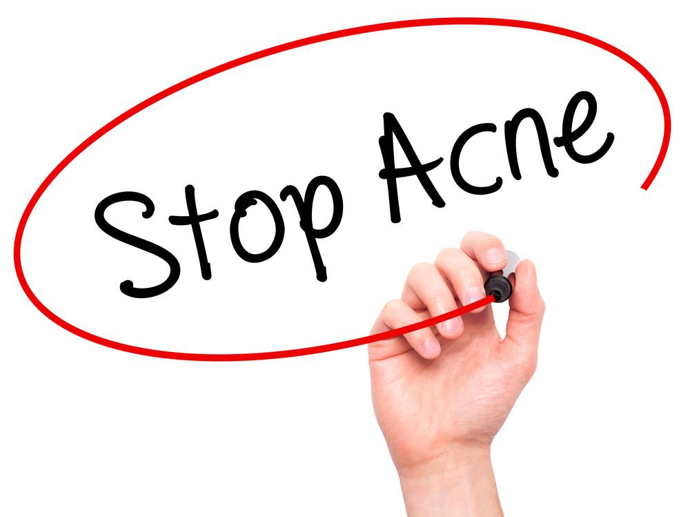 Hèhè: eindelijk goede tips tegen adult acne