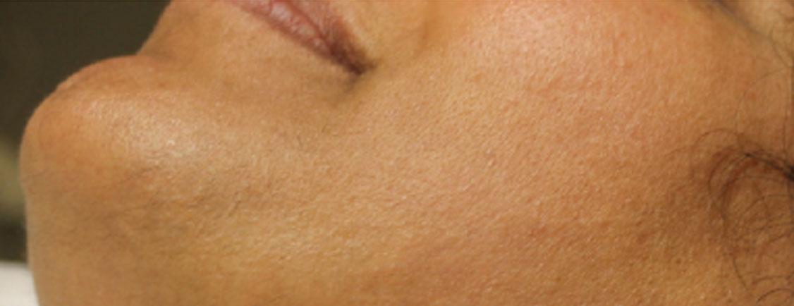 Patient in beeld: Overbeharingsklachten in het gezicht