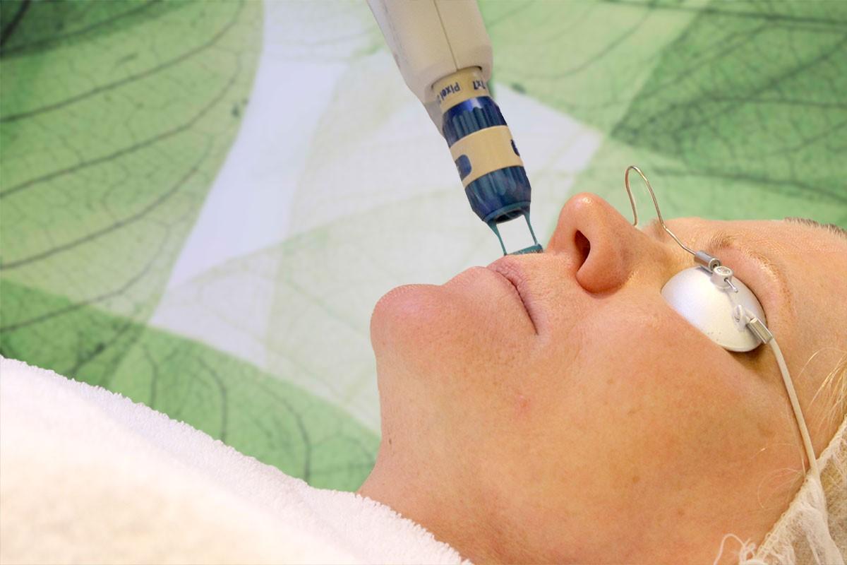 Fractional laser najaarsactie bij Laserkliniek Zwolle–Huidtherapie