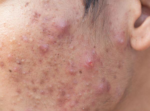 De huidaandoening Acne conglobata. Laserkliniek Zwolle-Huidtherapie