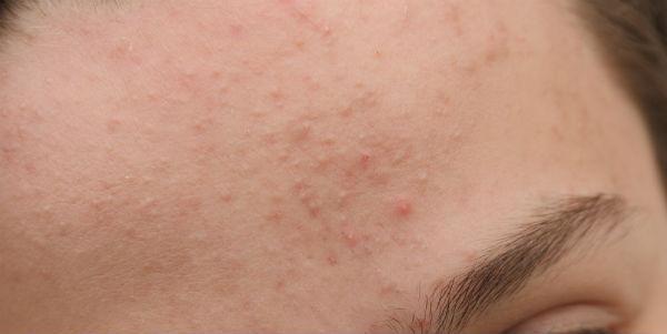 De huidaandoening Acne vulgaris. Laserkliniek Zwolle-Huidtherapie