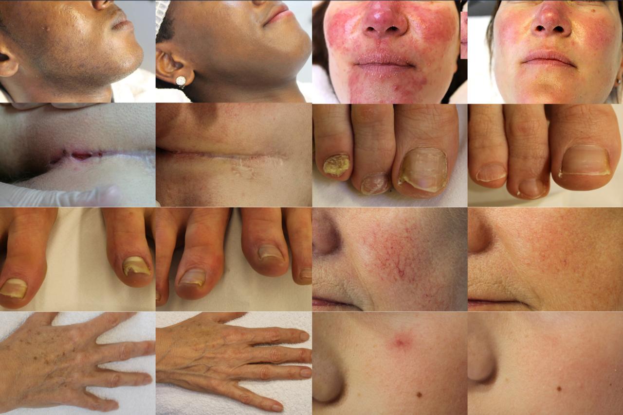 compilatie van Laserkliniek Zwolle met voor- en na fotos van diverse huidaandoeningen en behandelingen