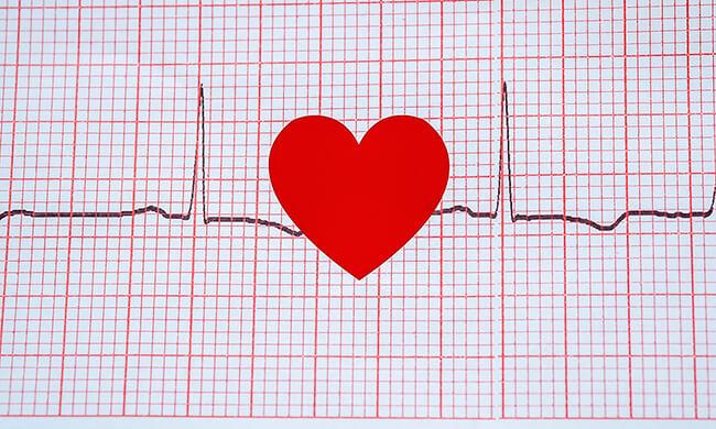 ECG readout can show dog heart failure. Dr. Ken Tudor has new portable ECG so it is part of regular exams.