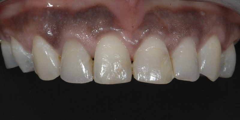 After aesthetic crown lengthening
