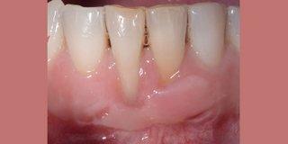 Before gum graft