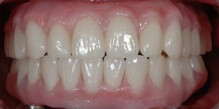After Fixed Dentures (All On Four Treatment)