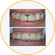 Amalgam-Free Fillings