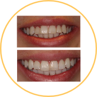 Invisalign Straightening