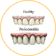 Periodontic Services