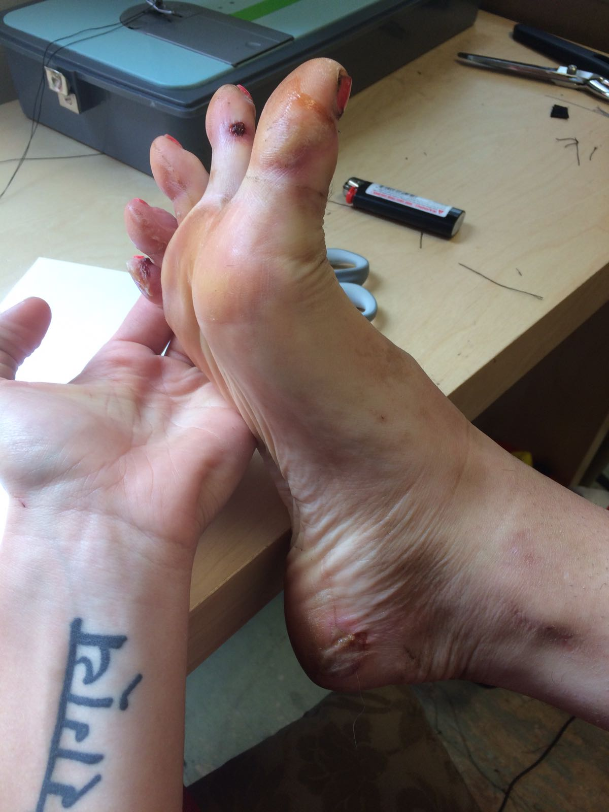 Foot damage and injury after hiking along the Pacific Crest Trail
