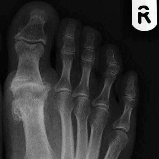 metatarsophalangeal joint osteoarthritis pain)