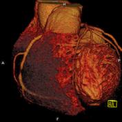 CT Koronarangiographie